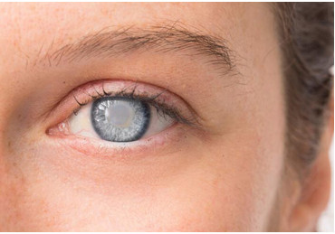 How to cure cataract folk remedies