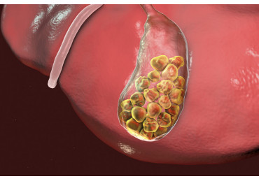 Gallstone disease: symptoms and treatment in adults