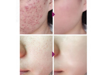 How to cure acne at home