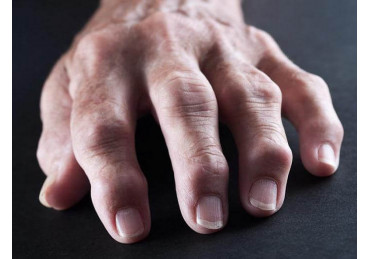 Arthritis: what is it? Causes, symptoms, treatment, prevention