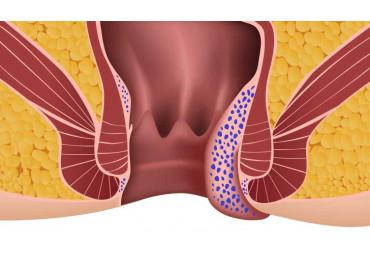 Home treatment of hemorrhoids